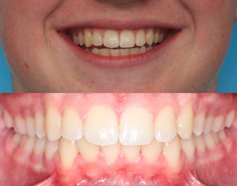 Invisalign in Auckland results 3