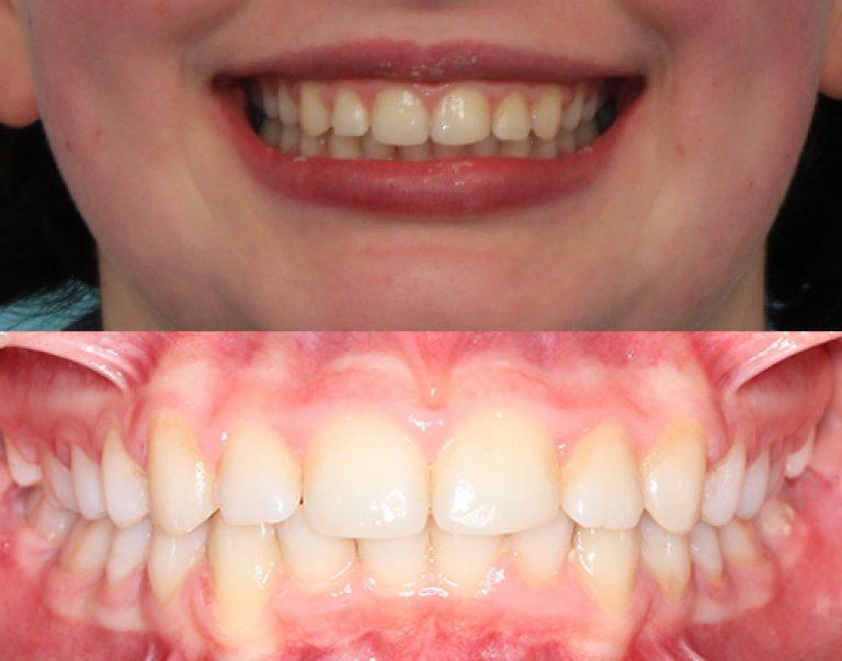Invisalign in Auckland results 8