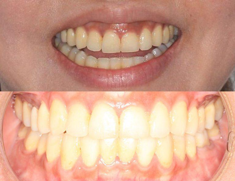 Invisalign in Auckland results 1