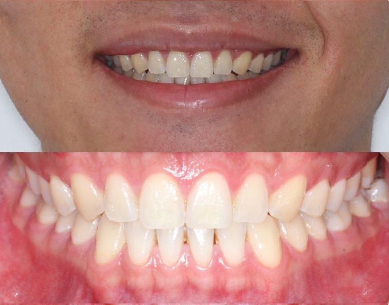 Invisalign in Auckland results 4