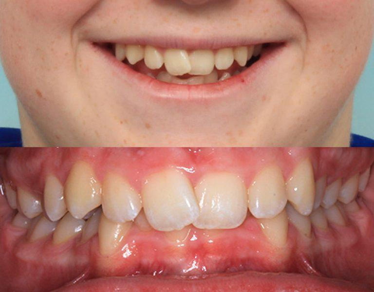 Invisalign in Auckland results 5