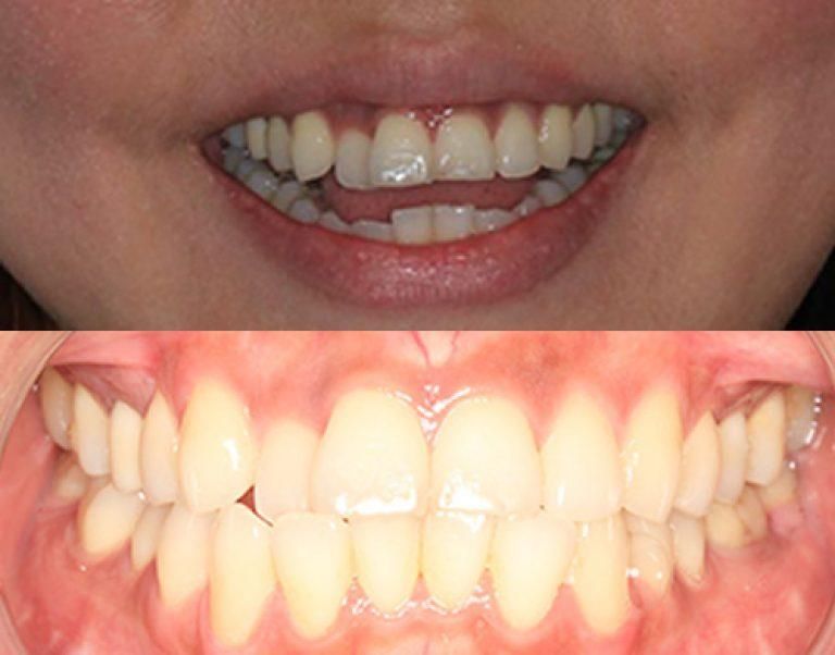 Invisalign in Auckland results 2