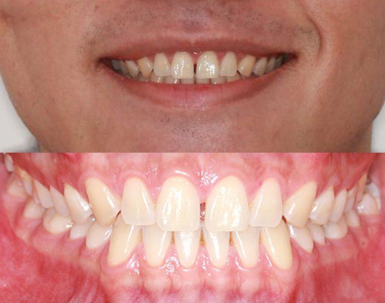 Invisalign in Auckland results 7